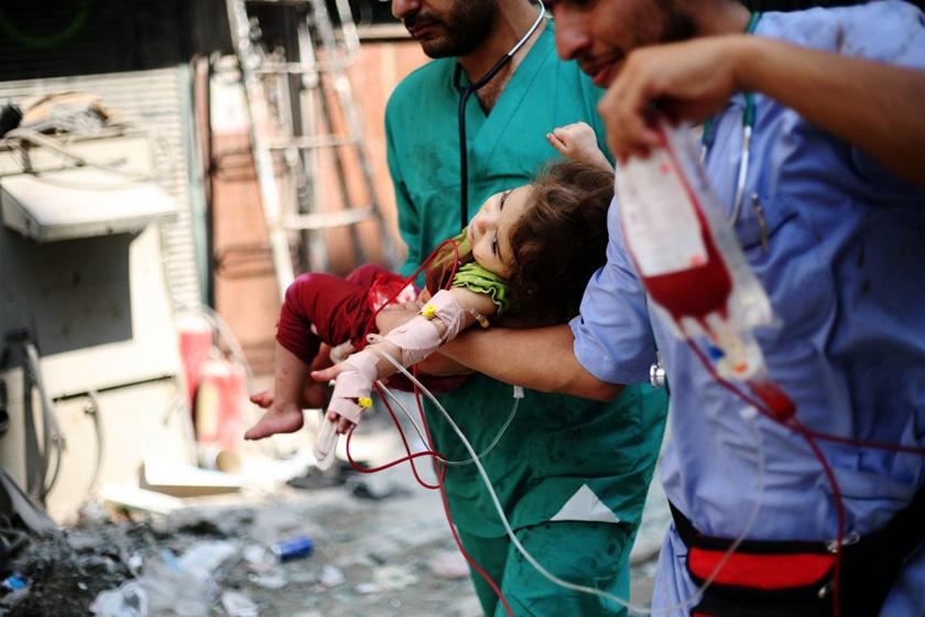 10月9日,叙利亚阿勒颇,一名小女孩受伤。叙利亚政府军同反对派的战事持续。   CFP_财新每周图片(2012.10.6-10.12)