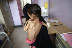 也门内战陷入胶着 平民生活凄惨儿童饿成皮包骨