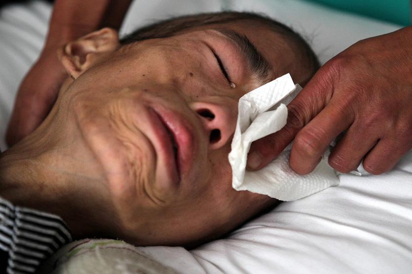 6月12日,杭州烧伤专科医院,王冲冲眼含泪水。 浙江日报集团/CFP_16岁患癌少年含泪捐器官